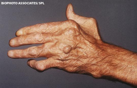 arthrosis 3 fokú lábkezelés fáj a könyökízület zsibbadt ujjai