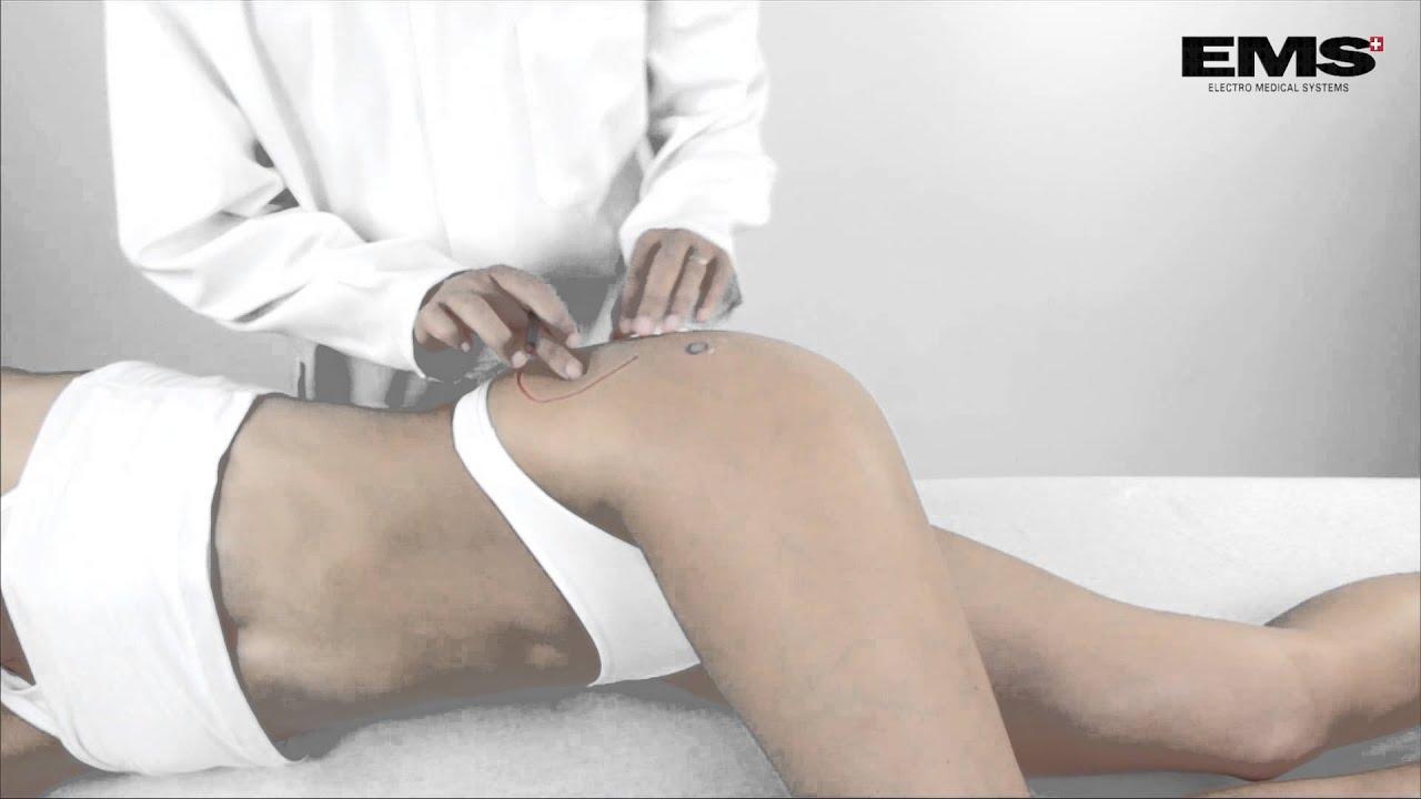 miért fáj a csípőízület, mint hogy kezelje