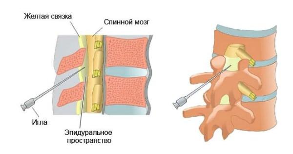 A gerinc osteochondrosisának kezelése gyógyászati szerekkel - Könyök