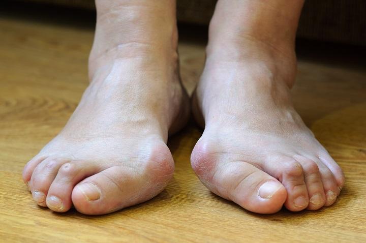a nagy lábujj akut izületi gyulladása