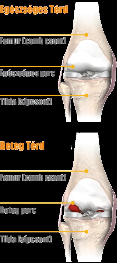 A térdízületi gyulladás típusai