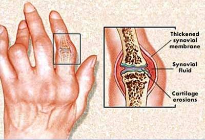 reumás artritisz