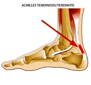 Achilles ín szakadás - lelki okai