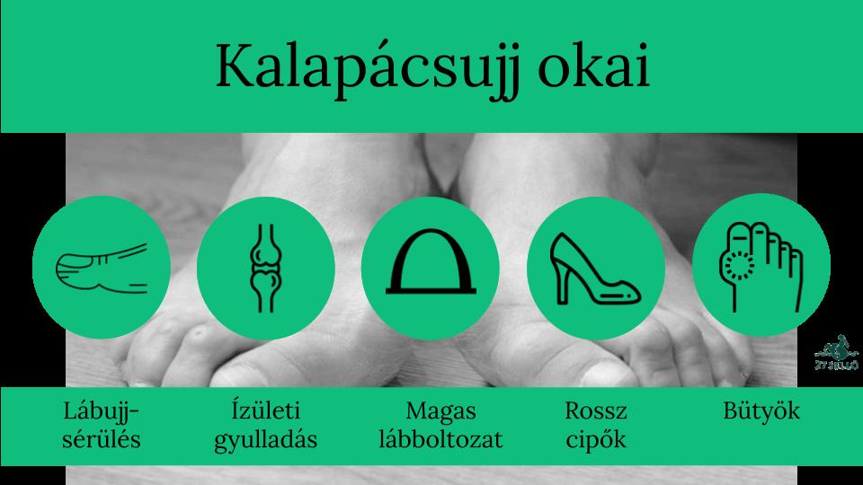 ízületi fájdalom a második lábujjban)