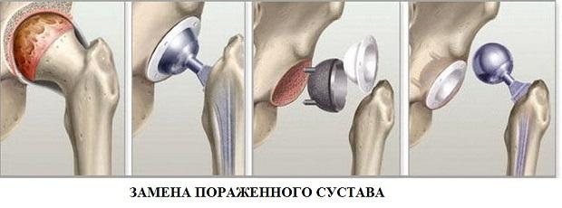 rumalon a csípőízület artrózisához)