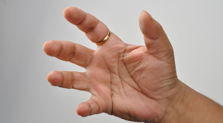 hol kezdődik az ujjak ízületi gyulladása bölcsességfog húzás utáni fájdalom