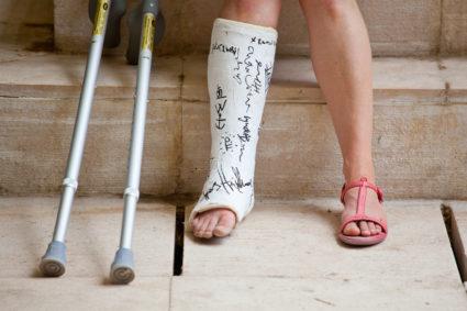 a bokaízület kezelésének 1 fokos szubluxálása otthon a csípőízületek fájó fájdalmainak oka