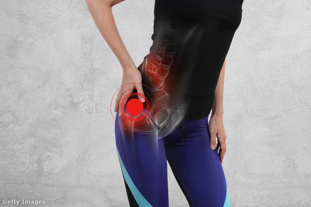 csípőízület ligamentumainak sérülése)