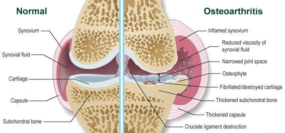 a térd szalagjai gyulladásának okai