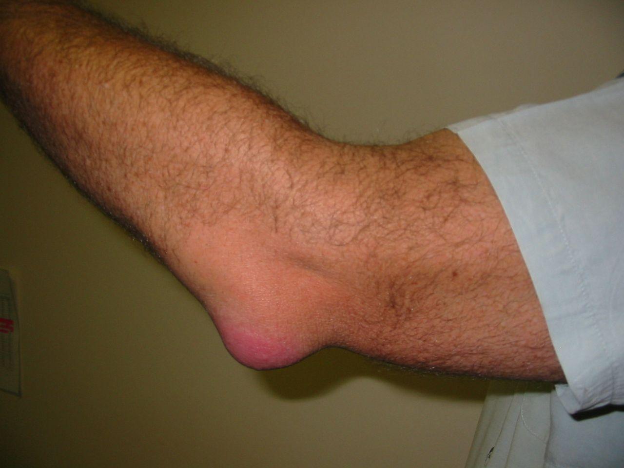 hogyan kezeljük a könyök bursitist fájdalom a térdízület alatt