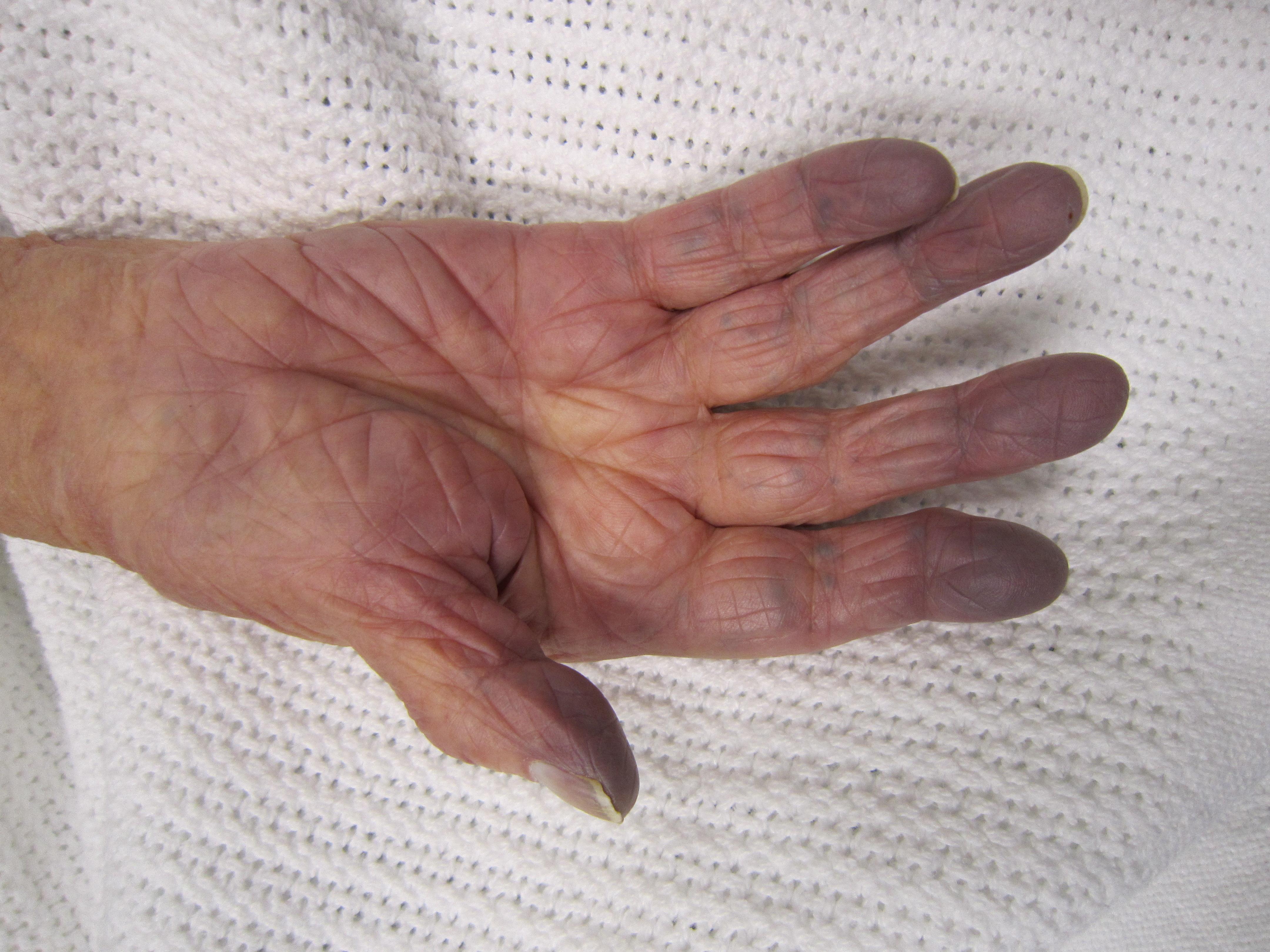 csípőizom-gyulladás