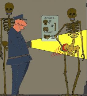 csípőfájdalom vizsgálat)