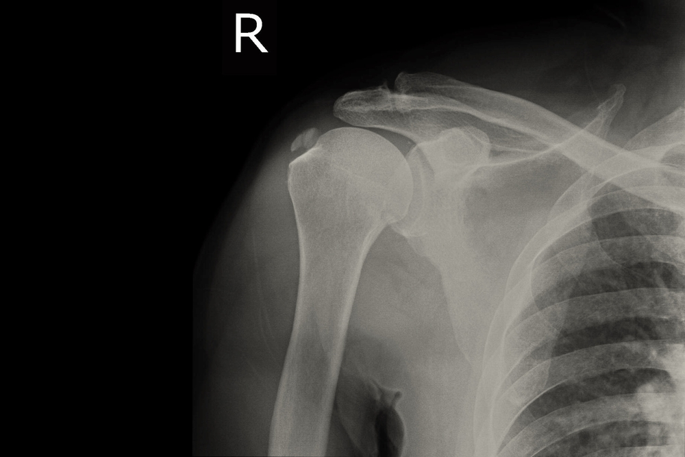 könyök osteoarthrosis kezelése hogyan kezeljük a könyök fájó ízületét