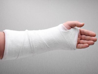 gipsz-sprain kezelés