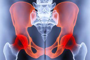 a csípőízület coxarthrosisának kezelési módszerei)