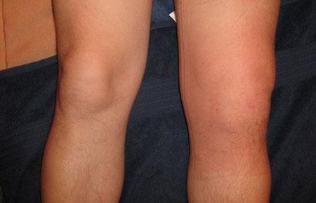 térdízületi gyulladás tünetei)