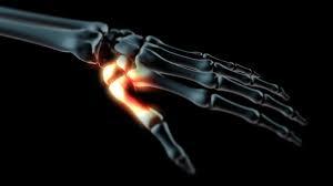 a hüvelykujj artrózisa hogyan kell kezelni)