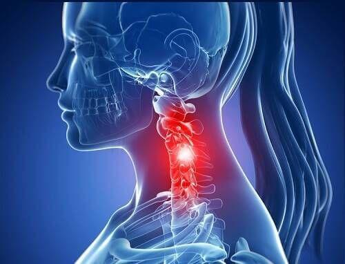 spondylosis arthrosis kezelés finn glükózamin-kondroitin