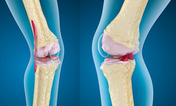 porcos kötőszövet szerkezeti jellemzői injekciók ízületi fájdalmakhoz a