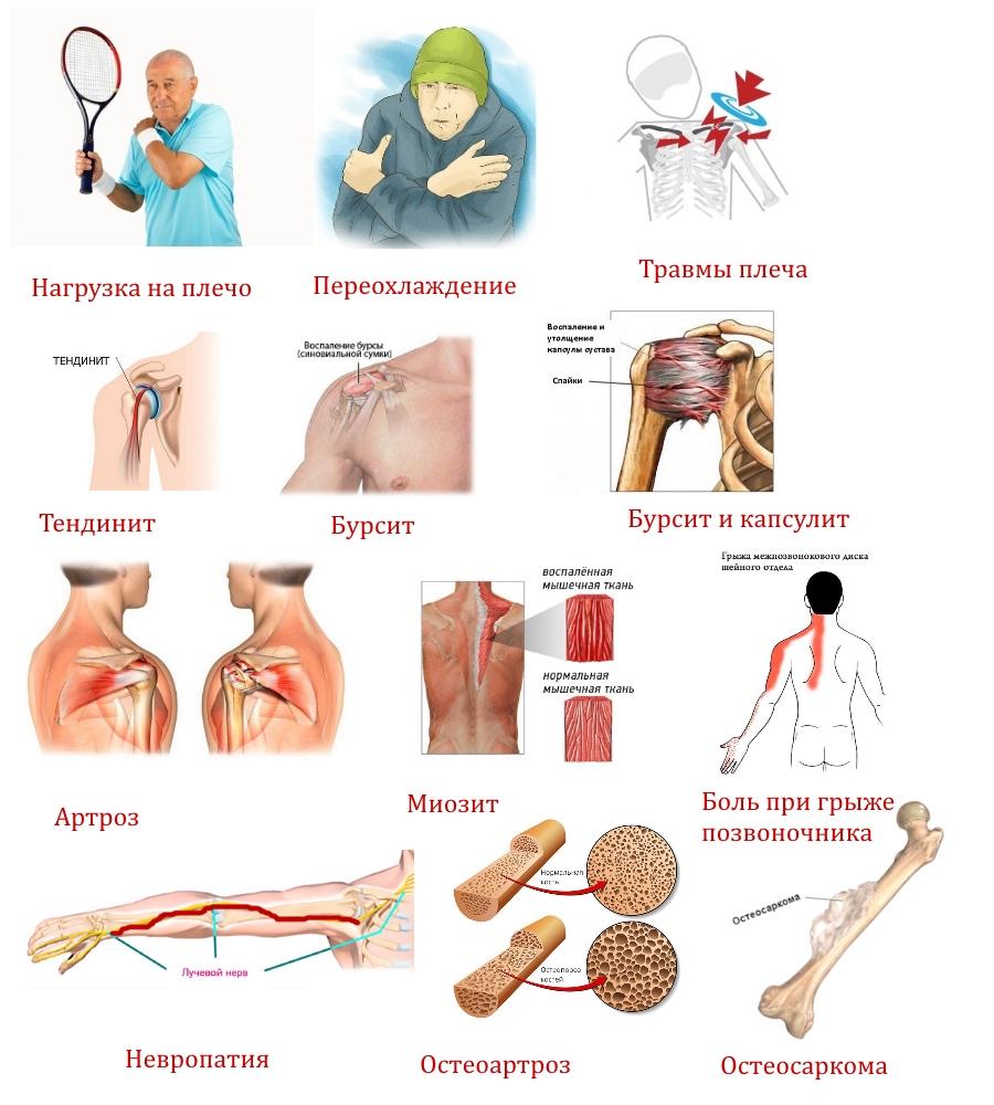 A daganatok okai és kezelése a könyökízületen