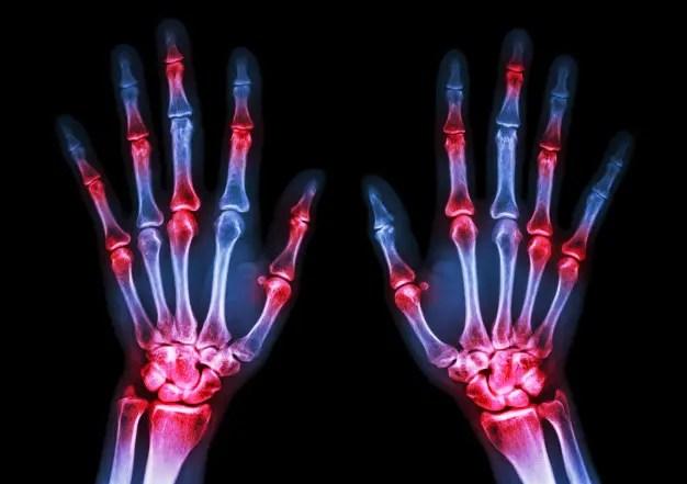 csípőízületek rheumatoid arthritis serdülőknél