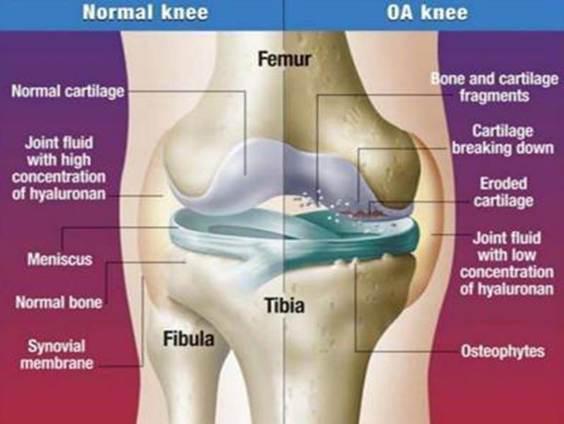 Szimpatika – Hialuronsavval enyhíthető a térdfájdalom