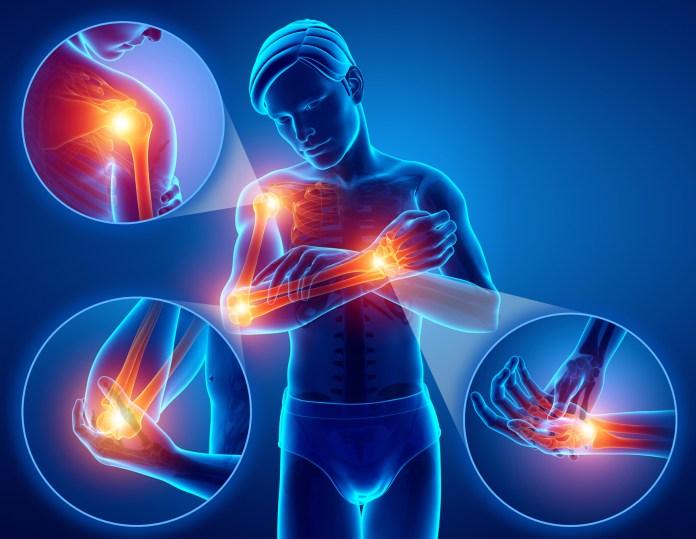 az izmok és az ízületek fájnak térdízület ízületi kezelése 3-4 fokkal