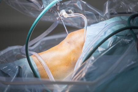 meniszcus térdkezelési áttekintések ha ennek a terriernek ízületi fájdalma van