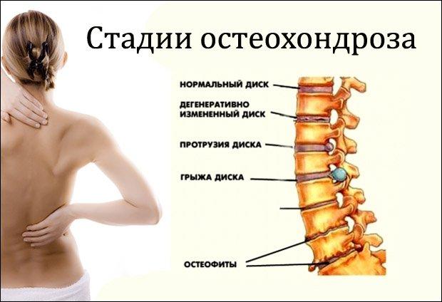nyaki osteochondrozist kezelő készítmények