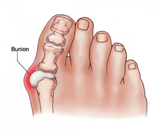 fájó lábát a boka járás közben