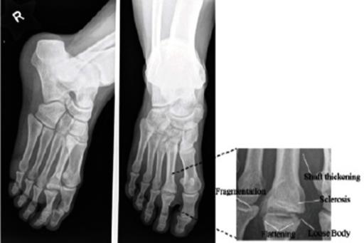 metatarsalis osteochondrosis por artrózis kezelésére