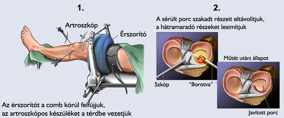 térdízületi műtét kezelése