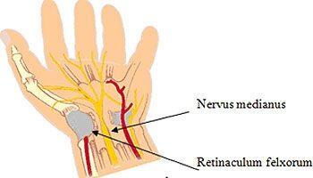 fájdalom a könyökízületi radiális idegben