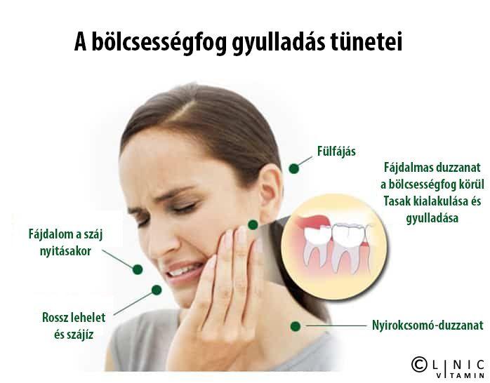 fülfájás és ízületi gyulladások)