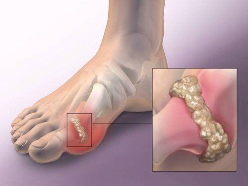 a láb ízületi kezelése)