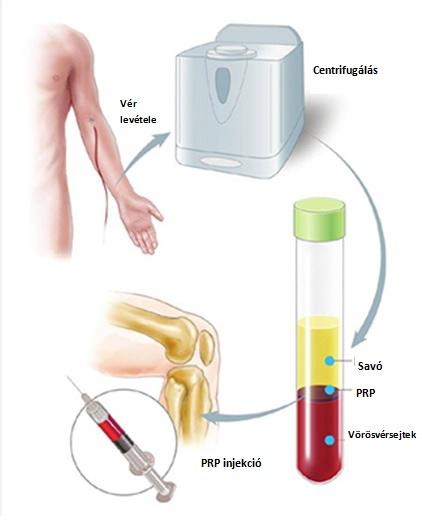 Három hatékony injekciós kezelés porckopásnál