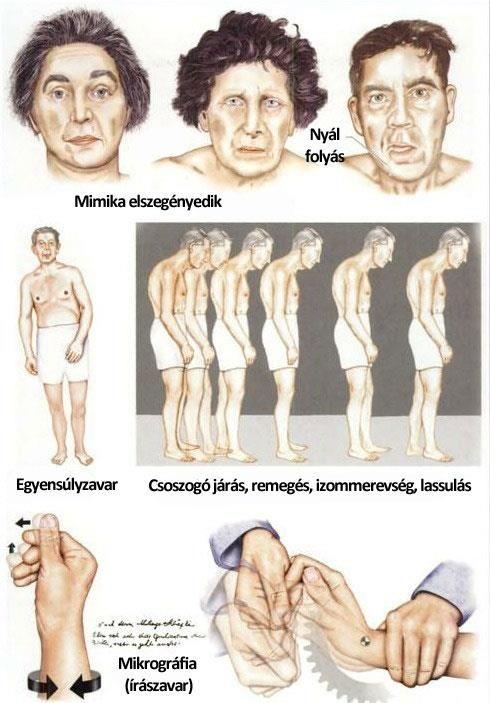 OTSZ Online - A fájdalom kezelése Parkinson-kórban