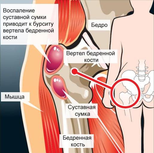 a csípőízületek deformáló artrózisa 2 evőkanál