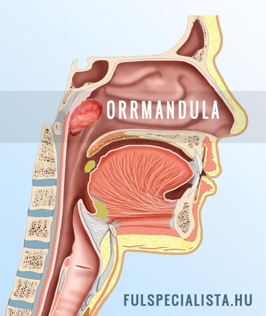 A mandulagyulladás okai
