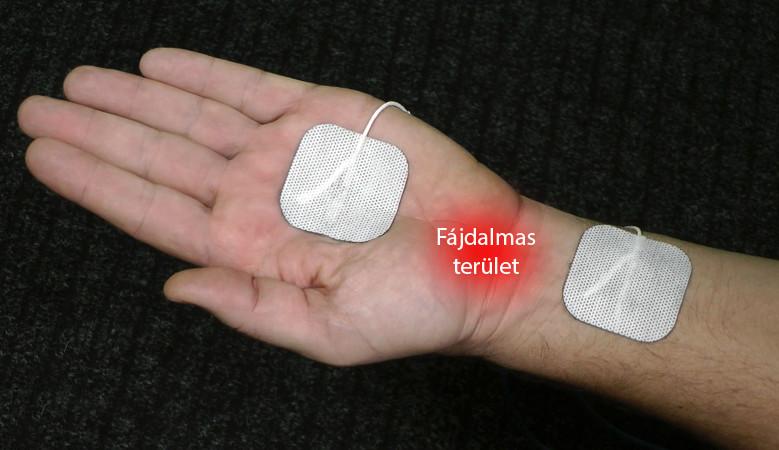 csuklóízület kezelése 2. fokozat)