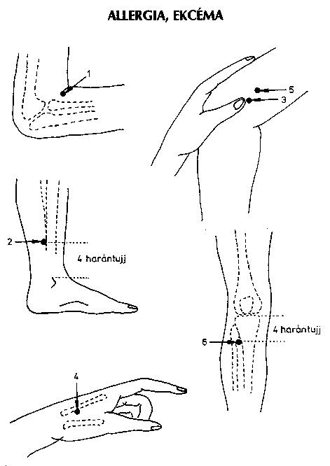 akupresszúra a térdízület fájdalmában ízületi fájdalom statisztikák