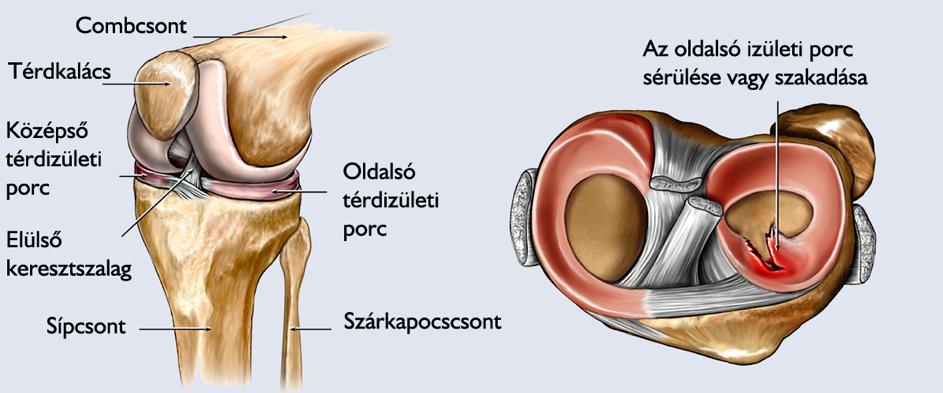 a térd belső párhuzamos ínszalagjának károsodása