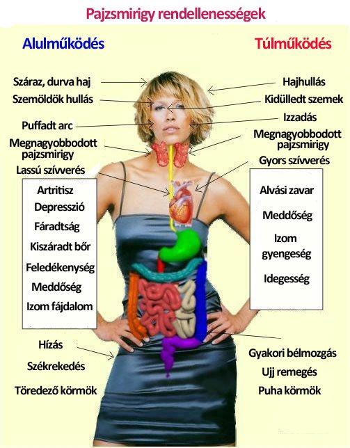 hypotyreosis és ízületi fájdalmak