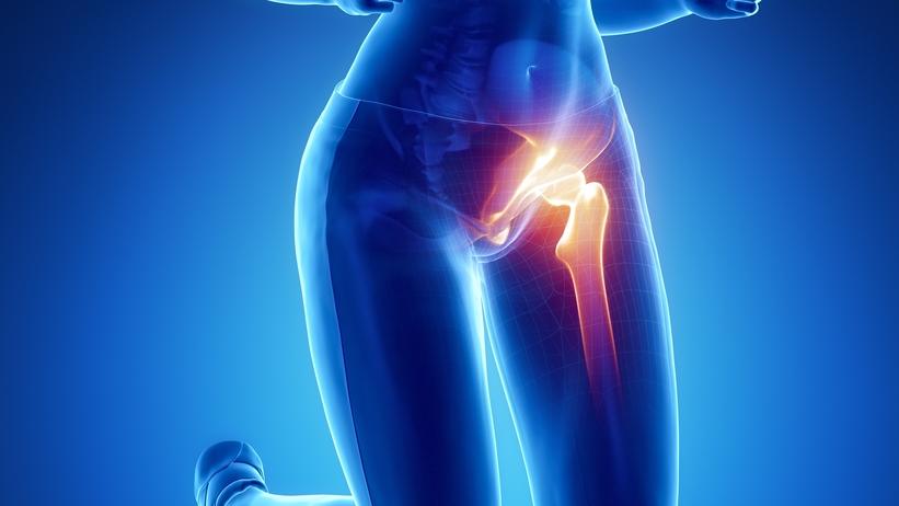 hogyan lehet kezelni a csípő és a térd artrózisát