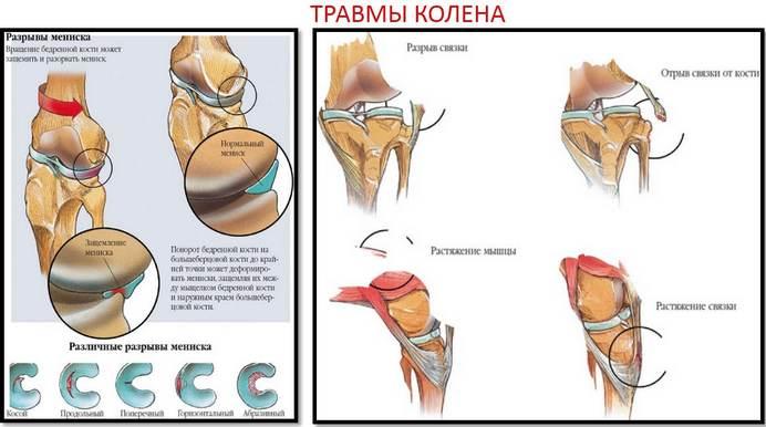 csípőízület artrózisának kondroprotektorjai)