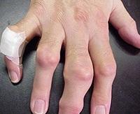 ízületi gyulladás ujjakon glükozamin-kondroitin plusz