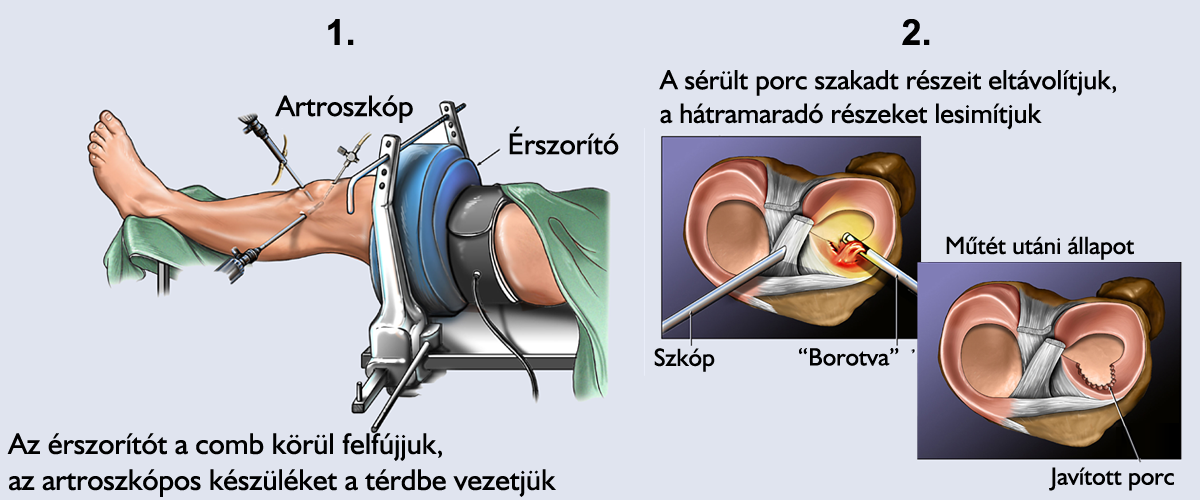 súlyos fájdalom térd műtét után)