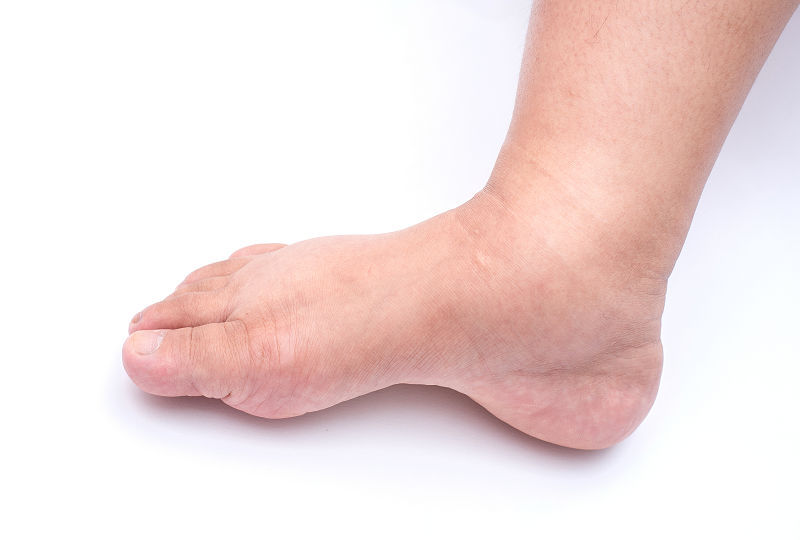 A dagadt láb házi kezelése