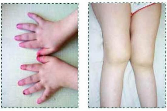 mikroáramú kezelés artrózis