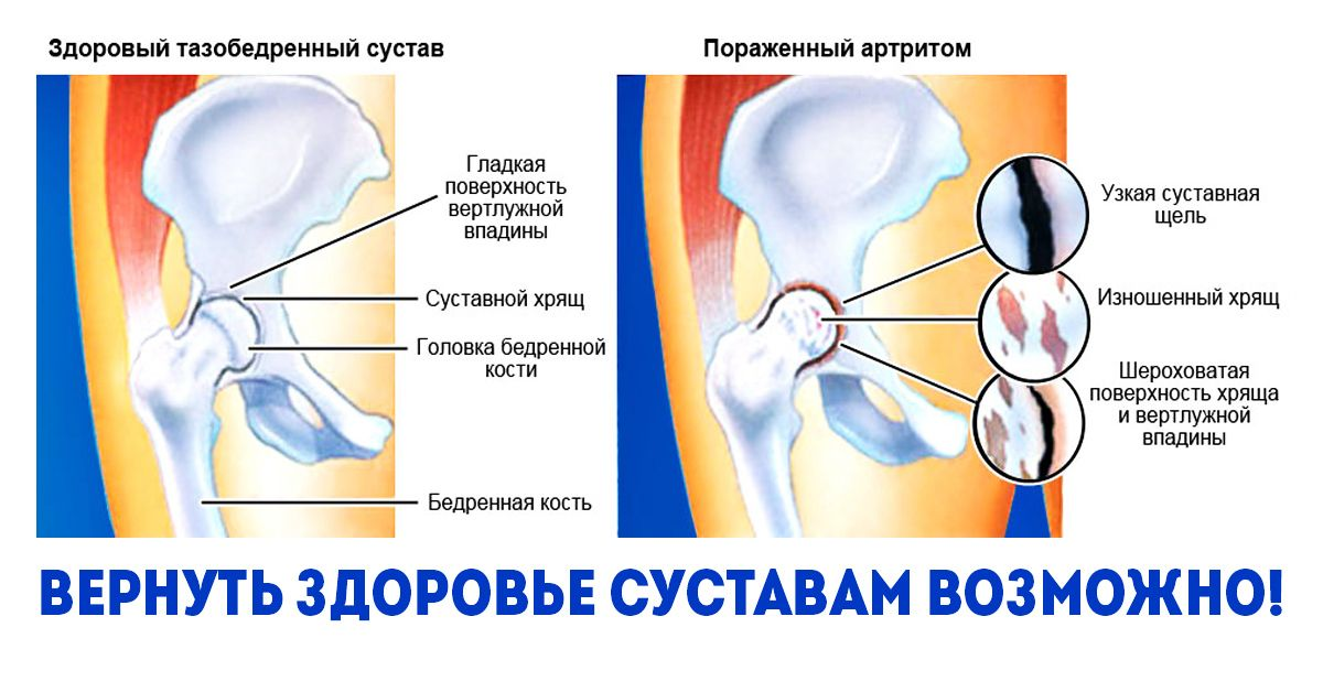 kenőcsök ízületi fájdalmakhoz és kompressziókhoz